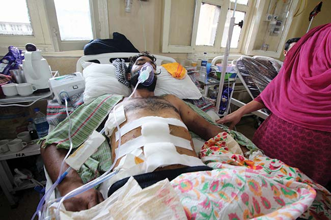 Ghulam Mohiuddin, ward 16 is hit by more than 200 pellets in his body